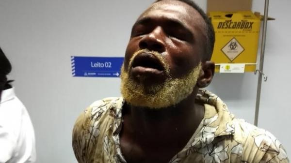 Homem que agrediu 5 pessoas com facão no Festival Virada Salvador é detido