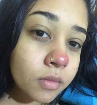 Caso de menina que ficou paraplégica após colocar piercing é raro, mas especialistas alertam para perigos do procedimento