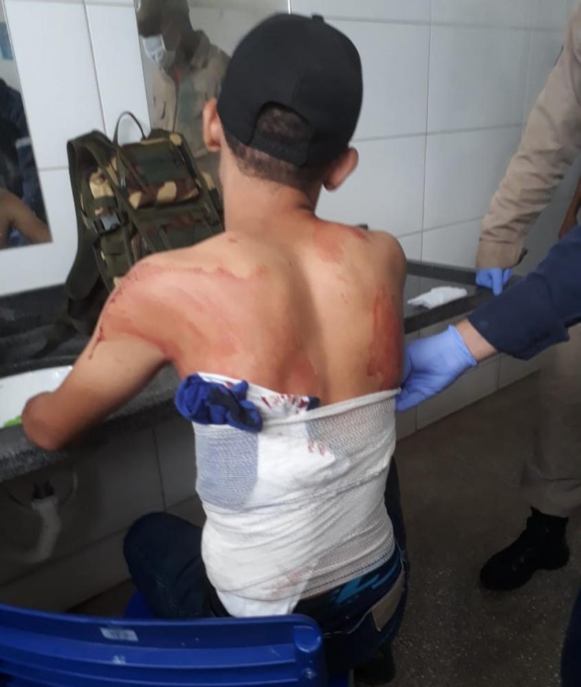 Médica é afastada no 1º dia de trabalho, após atender jovem com perfuração no pulmão em UPA e mandá-lo para casa em MT