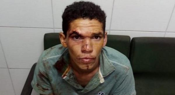 Filho drogado esfaqueia mãe grávida, mata cachorro e come pedaço do coração do animal